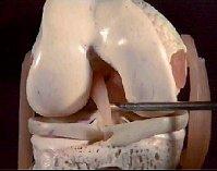 Come è fatto il ginocchio