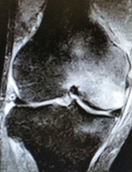 Hai un dolore al ginocchio improvviso e ingiustificato? Potrebbe essere un  edema osseo
